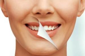 Manchas-Dientes-Blancos-Limpieza-Blanqueamiento-Dental