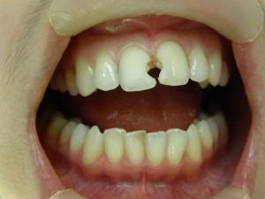 11 21 зубы до лечения после препарирования