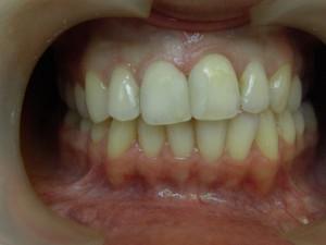 11 21 зубы после лечения